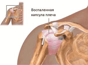 Как лечить капсулит плечевого сустава
