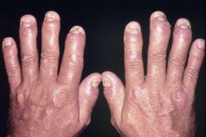 Как лечить псориатический артрит