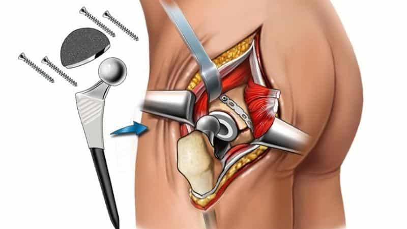 Все об эндопротезировании тазобедренного сустава