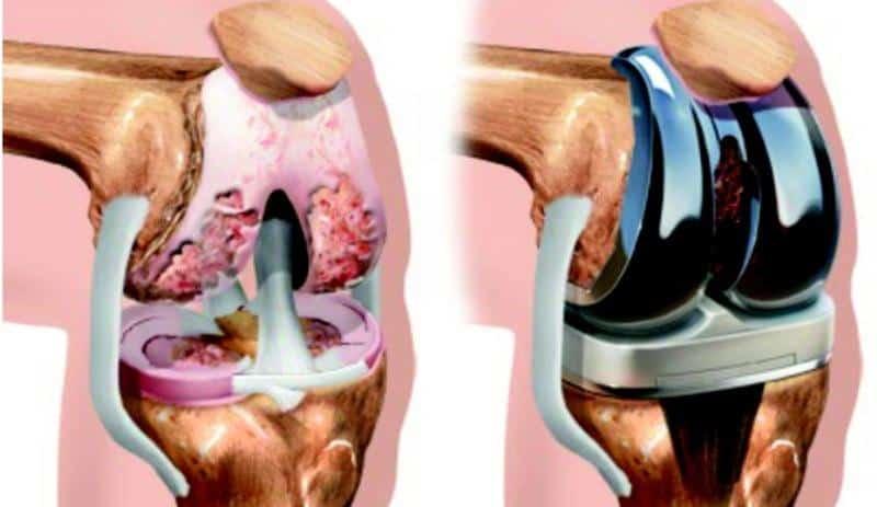 Как проходит замена коленных суставов