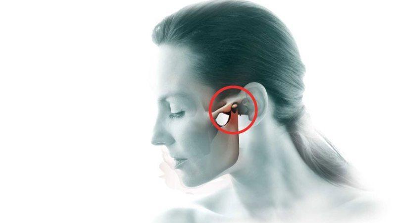 Артрит ВНЧС виды причины симптомы лечение