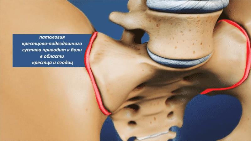 Как лечить артроз крестцово-подвздошного сустава