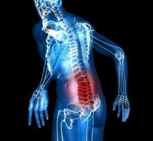Как лечить остеохондроз копчика