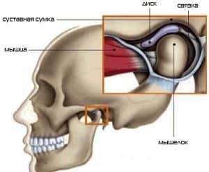 Как лечить артроз челюстного сустава