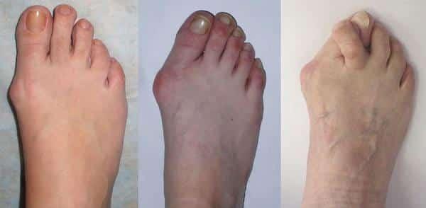 Как лечить артроз пальцев ног