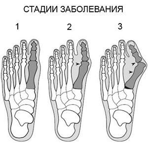Артроз пальцев ног симптомы и лечение народными методами