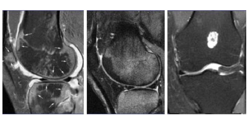 Как лечить трабекулярный отек костного мозга