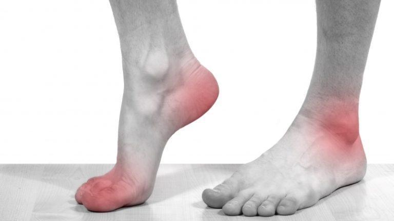Что делать если болит голеностоп