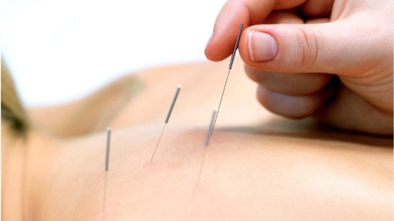 Помогает ли иглоукалывание при остеохондрозе