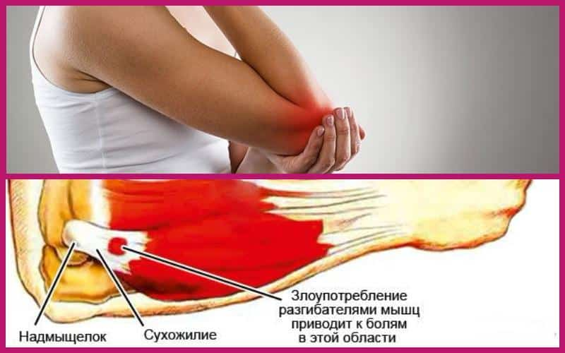 Тендинит локтевого сустава: симптомы и лечение народными ...