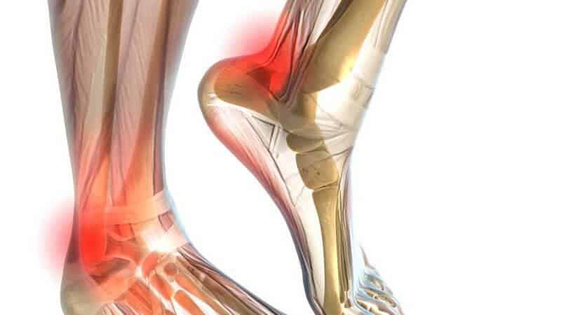 Что делать, если хрустит голеностопный сустав