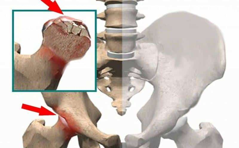 Что такое некроз кости и как его лечить