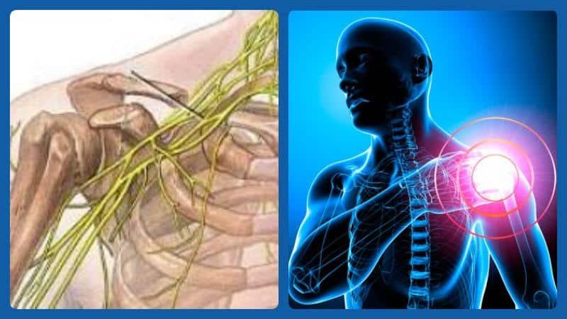 Неврит плеча