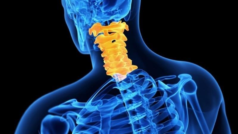 Как лечить остеоартроз шейного отдела