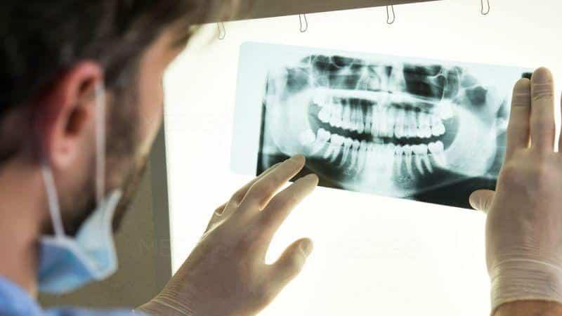Как лечить некроз челюсти