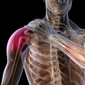 Изображение - Лечение перелома плечевого сустава бугорка perelom-bolshoho-bugorka-plechevoy-kosti-bez-smesheniya-2