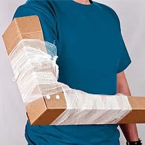 Изображение - Лечение перелома плечевого сустава бугорка perelom-bolshoho-bugorka-plechevoy-kosti-bez-smesheniya-6