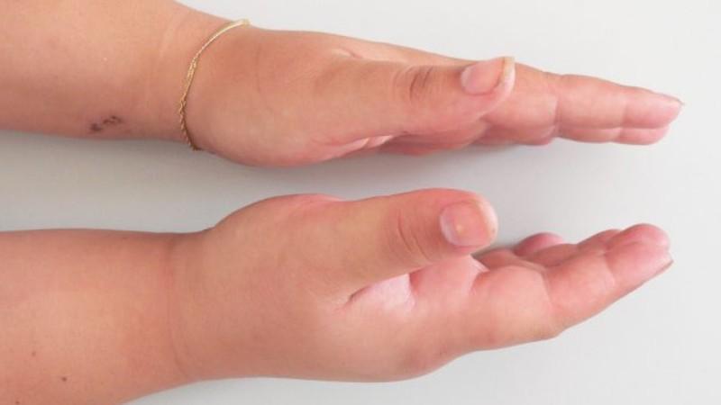 Как лечить перелом кисти