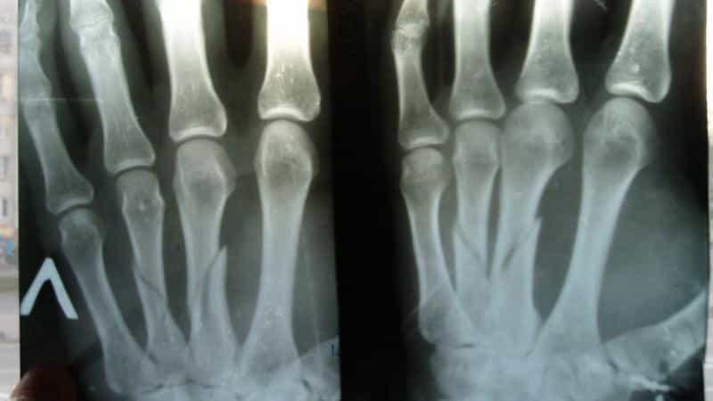 Как лечить перелом пястной кости