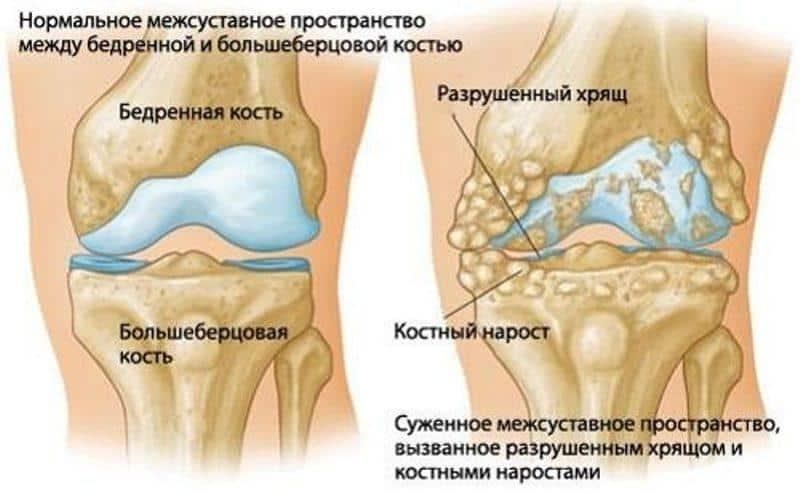 Генерализованный остеоартроз. Лечение генерализованной формы остеоартроза в клинике Стопартроз в Москве