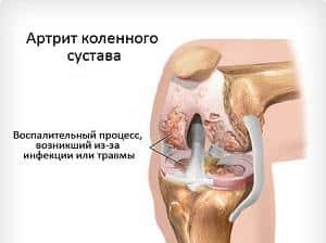 Как лечить подагру коленного сустава