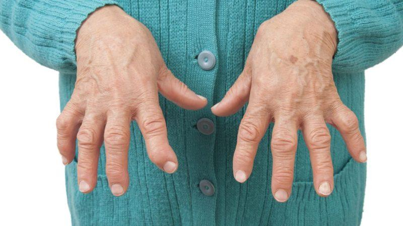 Полиартроз лечение в домашних условиях