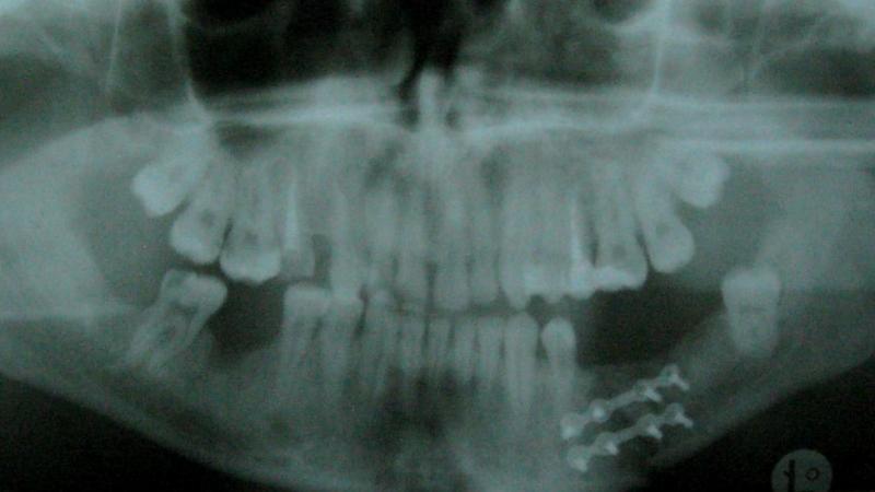 Как лечат перелом челюсти