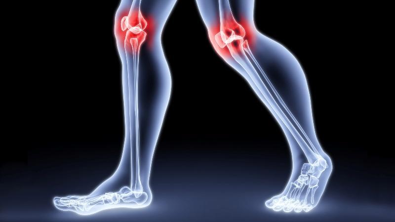 Что делать при вывихе колена