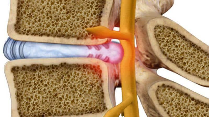 Как лечить боль в сердце при остеохондрозе