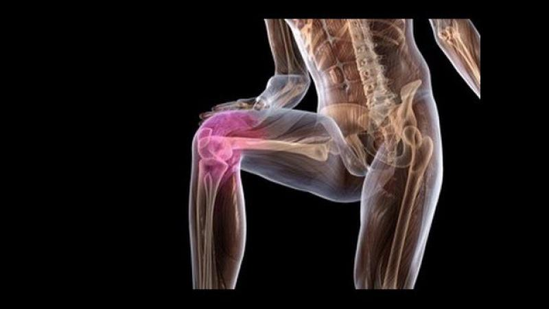 Как лечить хруст в плечевом суставе