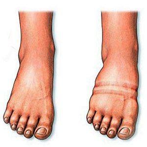Что делать, если опухают ноги ниже колен