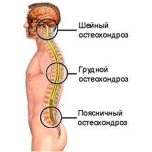 Какие таблетки принимают при остеохондрозе