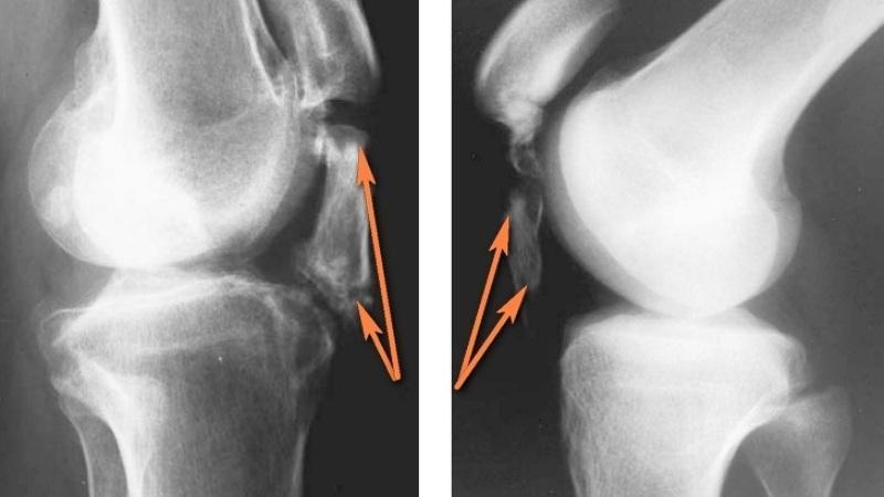 Как лечить перелом седалищной кости