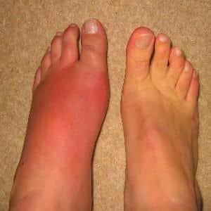 Воспаление суставов стопы лечение схема занятий в плавательном бассейне при анкилозе коленного сустава