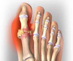 Как применять имбирь для лечения суставов