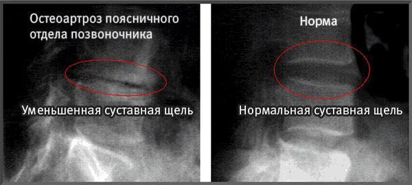 Как лечить остеоартроз позвоночника