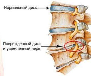 Мази для лечения остеохондроза поясничного отдела
