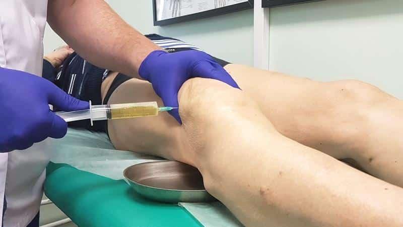 Как лечить бурсит гусиной лапки коленного сустава