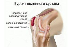 Что такое бурсит коленного сустава и как его лечить