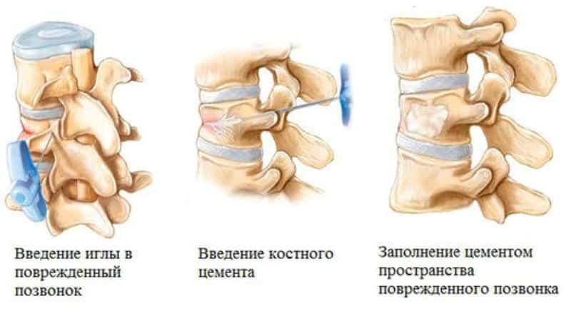 Влияние эрозии желудка на проведение операции вертебропластика