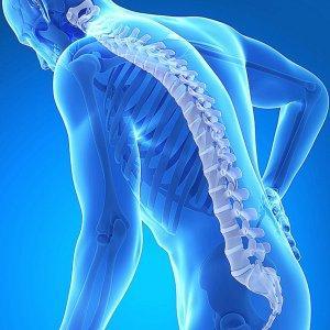 Что такое диффузный остеопороз