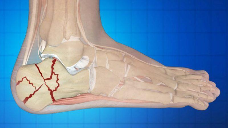Как лечить осколочный перелом позвоночника