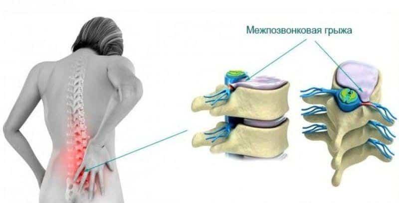 Помогает ли массаж при грыже позвоночника