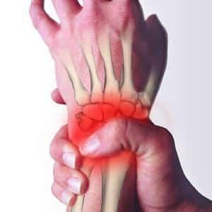 Как лечить остеохондроз руки