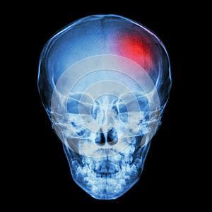 Как лечить перелом теменной кости
