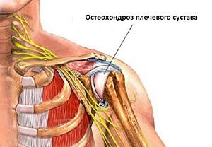 Как лечить остеохондроз плечевого сустава