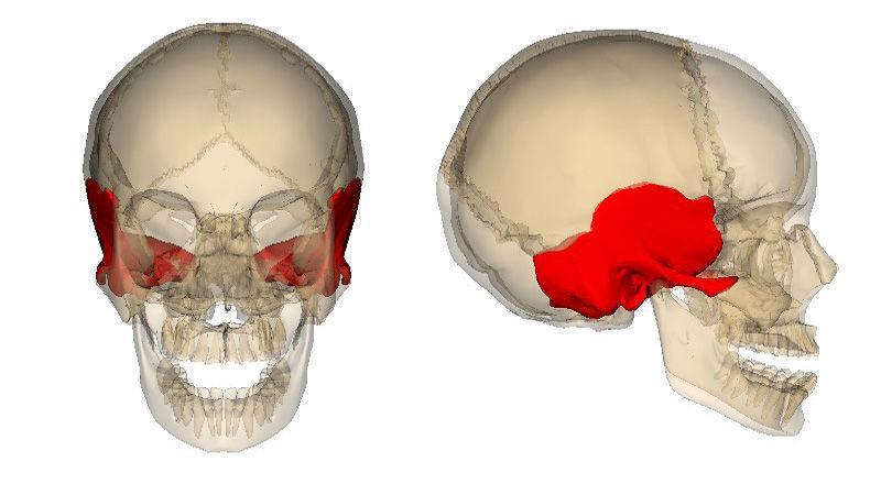 Как лечить перелом височной кости
