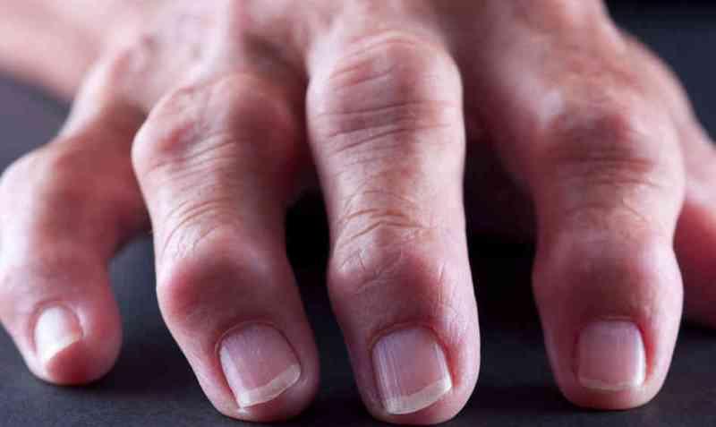 Как лечить ревматоидный артроз