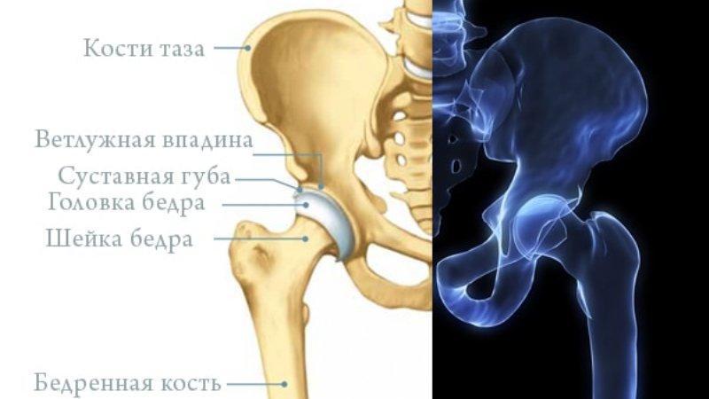 Как лечить кисту тазобедренного сустава