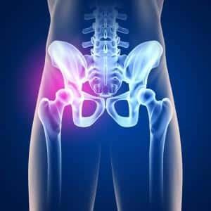 Как лечить остеохондроз тазобедренного сустава